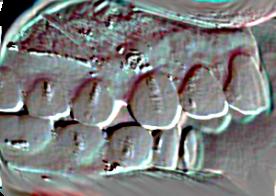 Trouble temporo Mandibulaire lors du traitement orthodontique