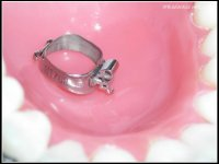 Bague molaire, Molar band