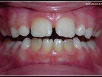 Dysharmonie Dento dentaire